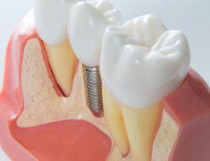 Zubní implantáty na celý život